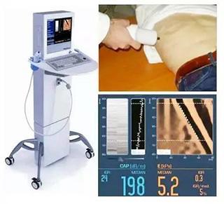 肝脏瞬时弹性检测:判断肝纤维化和肝硬度必不可少的检查